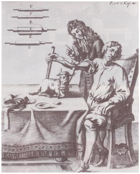 First transfusion in humans by French physician Jean-Baptiste Denis